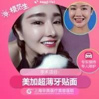 上海明星同款美加不磨牙贴面 不伤牙持久白 @黄嵩  针对牙黄 四环素 氟斑牙