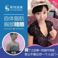 北京自体脂肪隆胸 10年以上整形从业专家亲诊 耐心打造真实美胸一次增大1-2罩杯