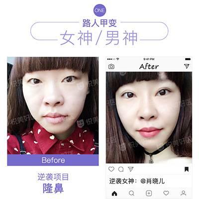 北京假体隆鼻