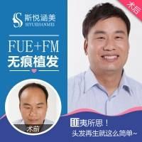 毛发移植 北京毛发移植 FUE+FM无痕植发 种植头顶 发际线 鬓角 美人尖 1000单位