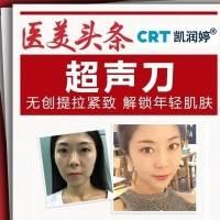 北京美版超声刀 不开刀变年轻(单部位)