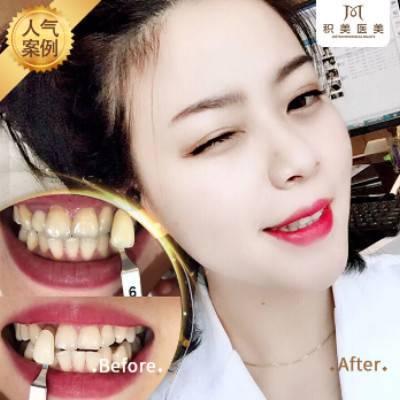 牙齿冷光美白