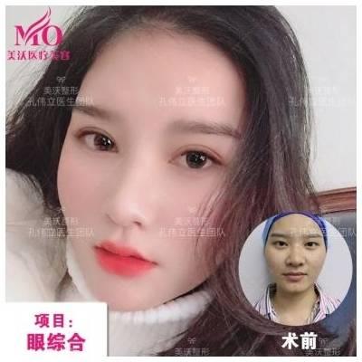 韩式双眼皮修复