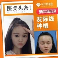 毛发移植 杭州格莱美植发 发际线调整 美人尖种植 经典FUE植发术 修饰脸型