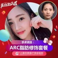 上海王荣锡ARC脂肪填充6个部位套餐9800元 丰额头苹果肌太阳穴法令纹