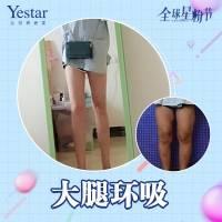 吸脂瘦大腿私信抢红包Yestar大腿螺旋环吸安全高效塑造迷人好身材还你曼妙身姿