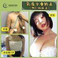胸部下垂矫正