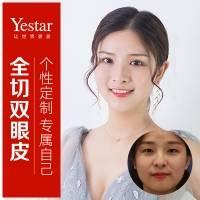 韩式双眼皮 切开双眼皮 双眼皮 私信领红包 安全专业选艺星  拒绝大小眼